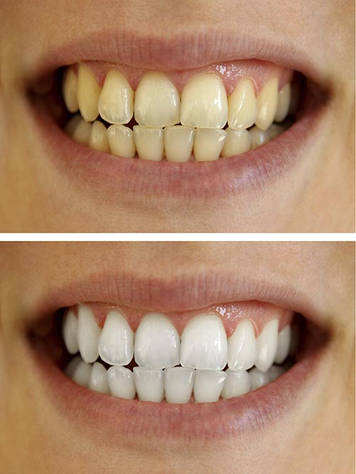A patients smile, before and after a whitening treatment.